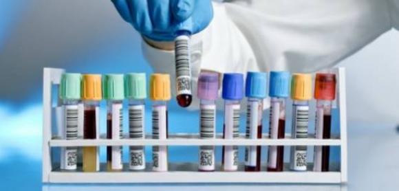 计算机感测处理血液标本专利分析