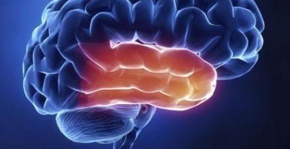 复脉滋肾化痰饮辅助西医治疗急性脑梗死的临床效果分析